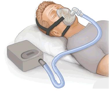 Obstructive Sleep Apnea Specialist in Jaipur Rajasthan India - Dr Sheetu