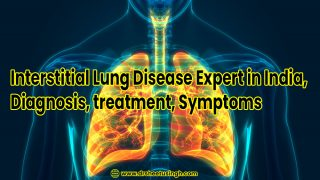 Interstitial Lung Disease Expert in India, Diagnosis, treatment Dr