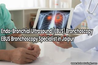 EBUS Bronchoscopy Specialist in Jaipur Endo-Bronchial Ultrasound (EBUS) Bronchoscopy