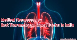 Medical Thoracoscopy Best Thoracoscopy Expert Doctor in India
